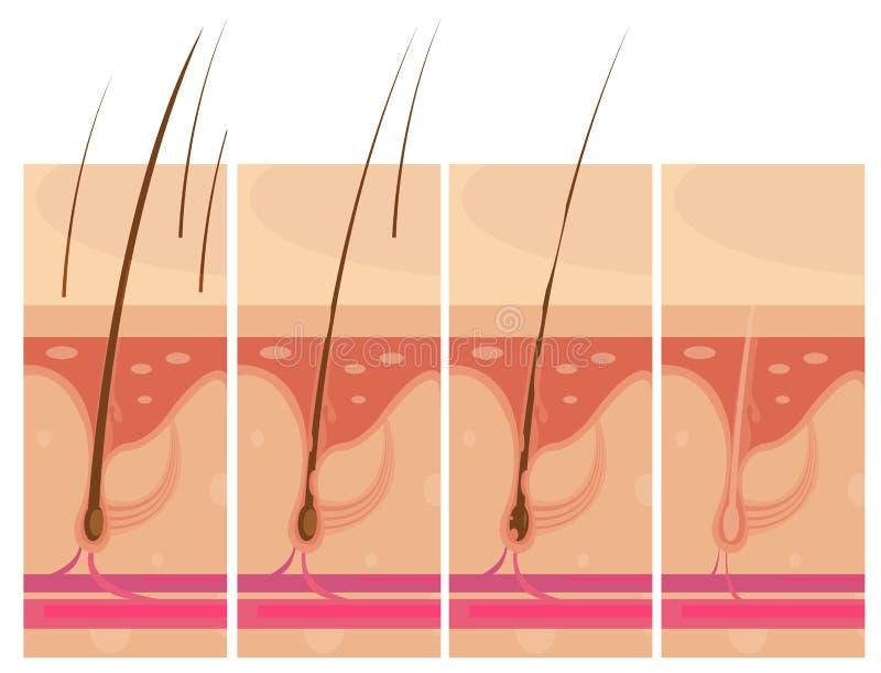 Begrepp för hud för hårförlust stock illustrationer