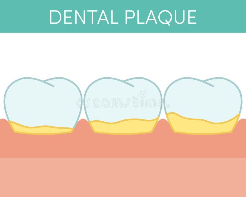Begrepp för tand- platta stock illustrationer
