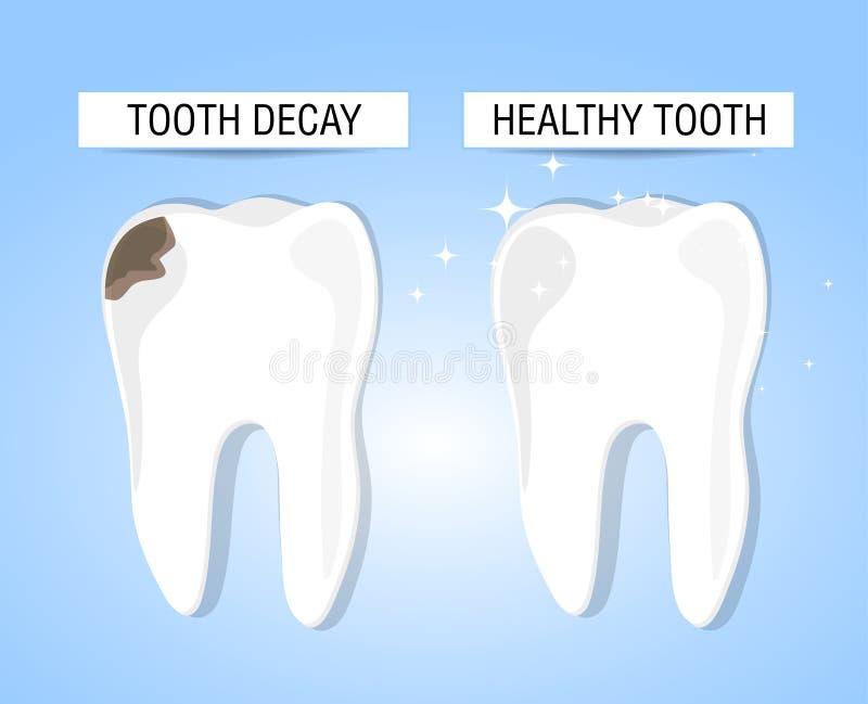 Begreppet av den sunda och sjuka tanden stock illustrationer