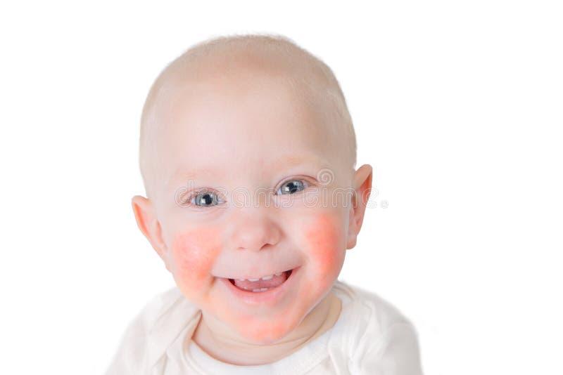 Begreppet för matallergin - behandla som ett barn med dermatit på kinder royaltyfria foton
