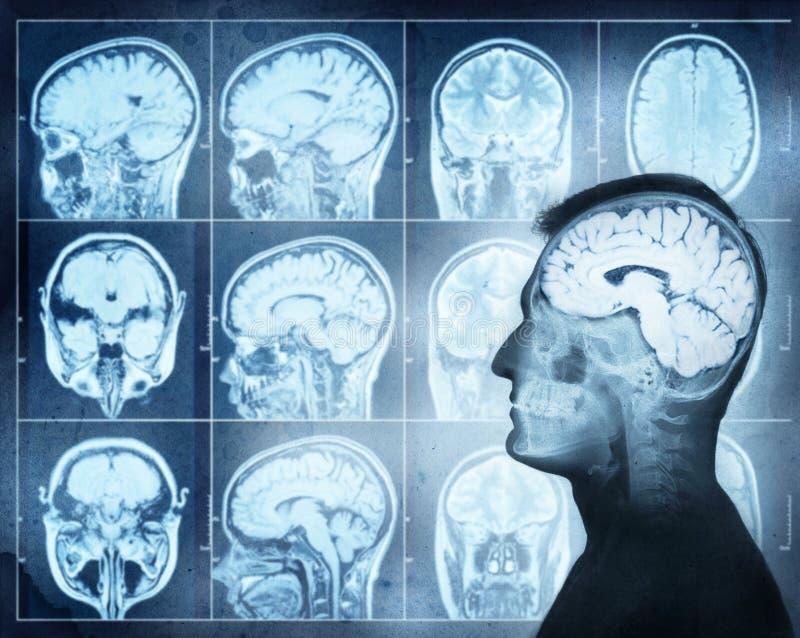 Begriffsbild eines Mannes vom Seitenprofil, das Gehirn activ zeigt stockfoto