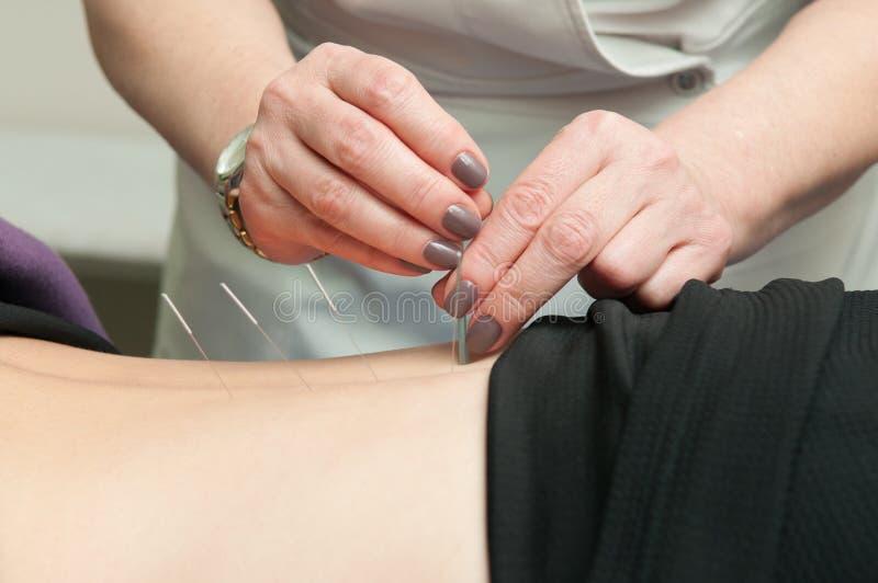 Behandeling door acupunctuur royalty-vrije stock afbeelding
