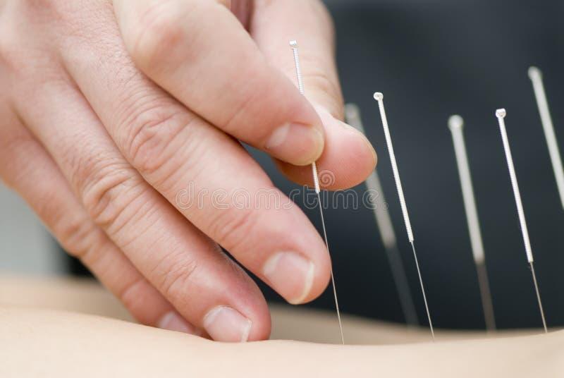 Behandeling door acupunctuur stock foto