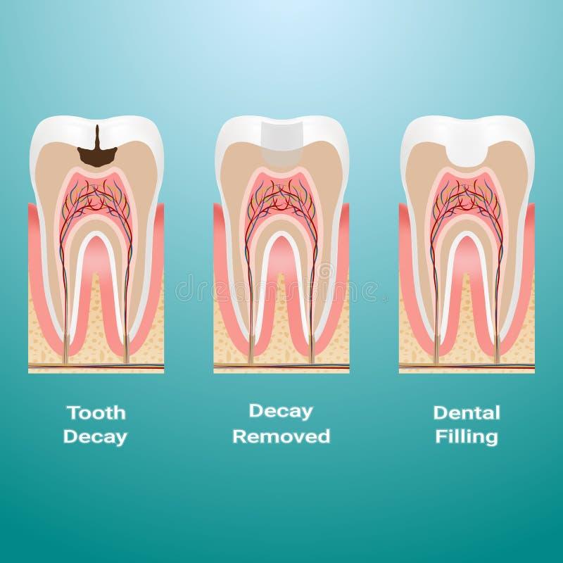 Behandeling van bederf Het tand vullen Gedetailleerd die Tandbederf op een Achtergrond wordt geïsoleerd Vector illustratie royalty-vrije illustratie