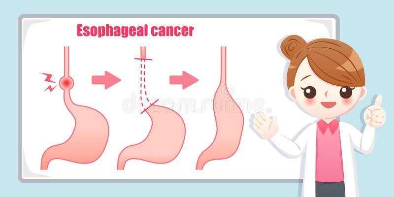 Behandeling van esophageal kanker royalty-vrije illustratie