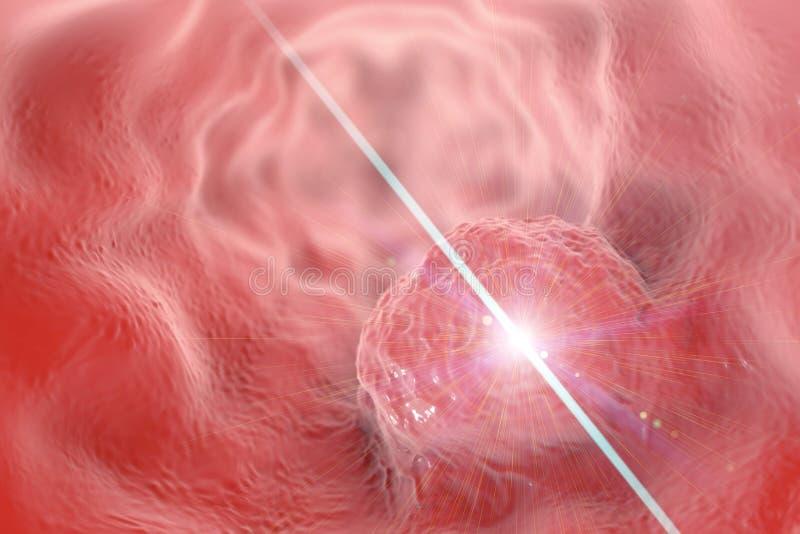 Behandeling van esophageal kankerconcept vector illustratie