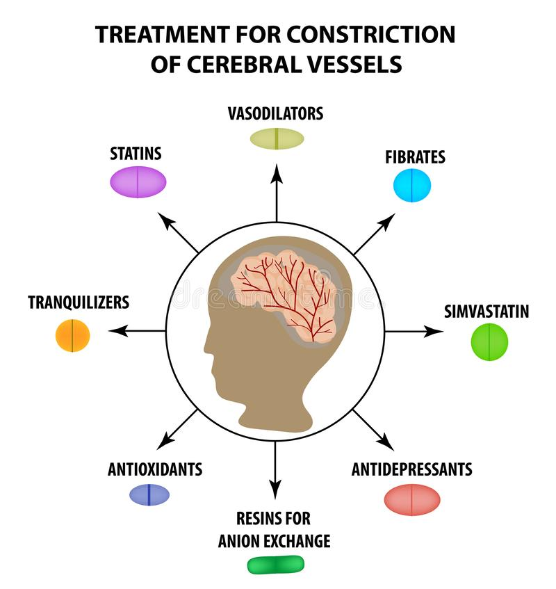 Behandeling van hersen vasculaire beklemming De Dag van de wereldslag Infographics Vectorillustratie op geïsoleerde achtergrond vector illustratie