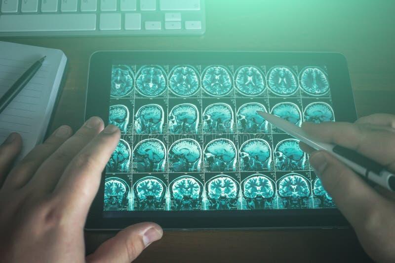 Behandeln Sie das Betrachten der Tablette auf seiner Tabelle mit MRI-Gehirnscan oder Röntgenstrahl, modernes medizinisches Diagno lizenzfreie stockfotos