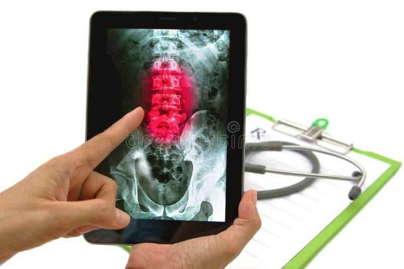Behandeln Sie das Schauen des Rückendorn-Röntgenstrahlbildes auf Tablette stockfoto