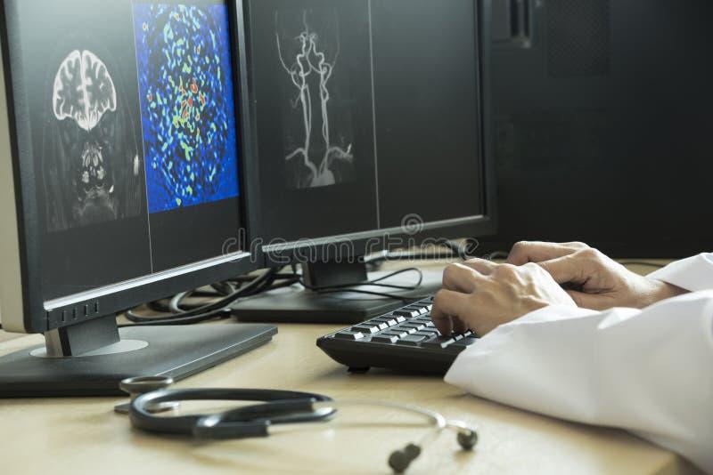Behandeln Sie das Zeigen auf Gehirnanatomie auf MRI-Bild lizenzfreie stockfotografie