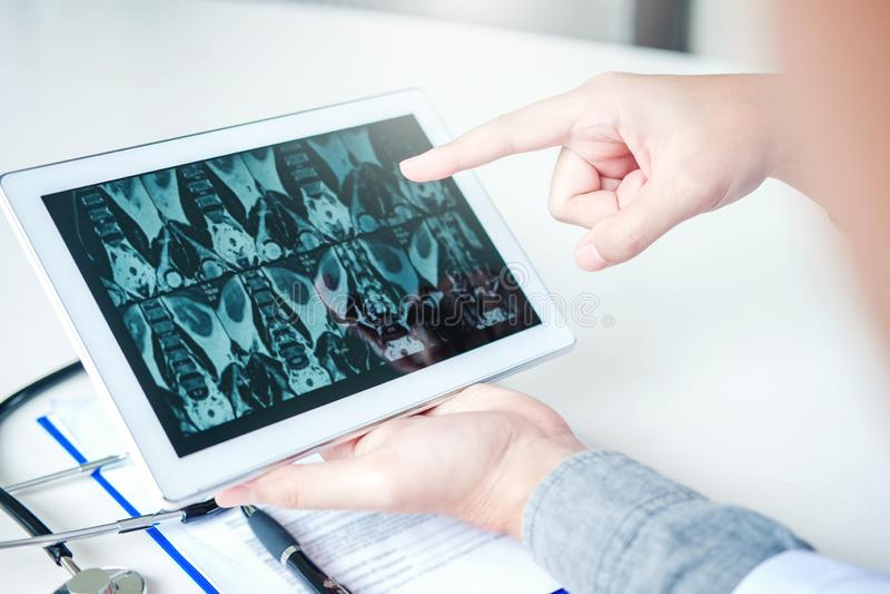 Behandeln Sie die Beratung mit dem Patienten, der Röntgenfilmauswirkungen auf die digitale Tablettentablette darstellt, die bei T stockfotografie