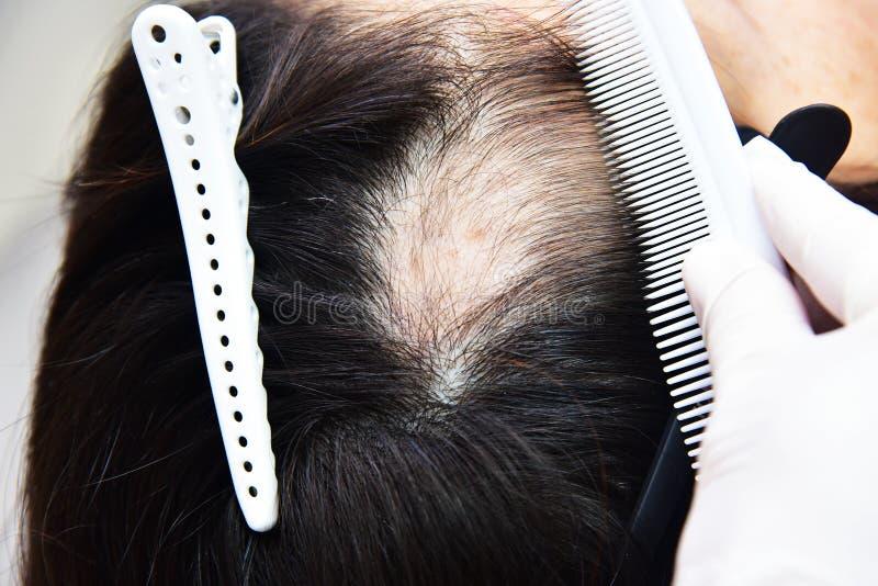 Behandling av flintskallighet med sk?nhetinjektioner Cosmetologist'sens h royaltyfri fotografi