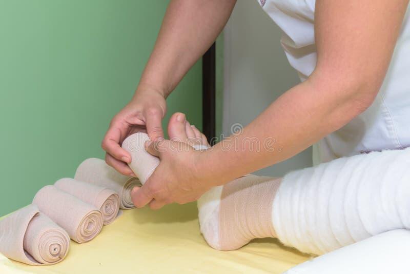 Behandling av lymfom: Svällningsben med multilagerförband för att kontrollera lymfom En del av fullständig degestiv behandling ka arkivbild
