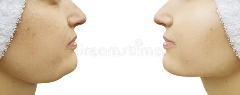 Behandling för collage för korrigering för kvinnadubbelhaka som före och efter saggingtightening royaltyfria foton