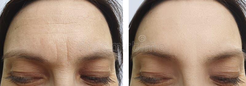 Behandling för korrigering för terapi för föryngring för kvinnaframsidaskrynklor före och efter royaltyfria foton