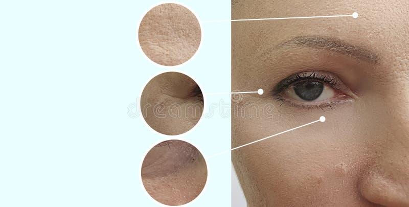 Behandling för korrigering för tillvägagångssätt för dermatologi för collage för kvinnaframsidaskrynklor före och efter mogen arkivbilder