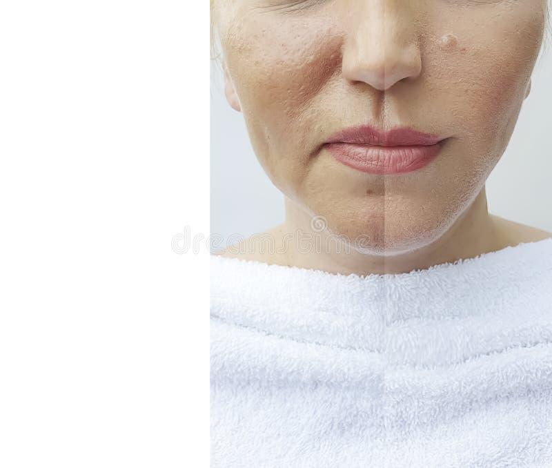 Behandling för korrigering för tillvägagångssätt för dermatologi för collage för spänning för kvinnaframsidaskrynklor före och ef royaltyfri foto