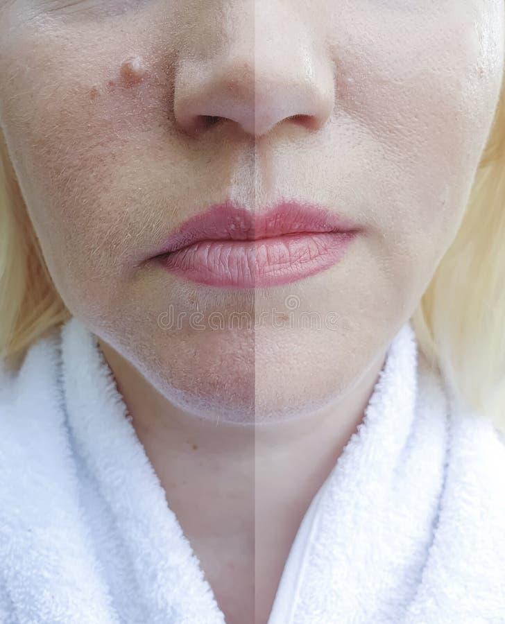 Behandling för korrigering för tillvägagångssätt för dermatologi för kvinnaframsidaskrynklor före och efter royaltyfria foton