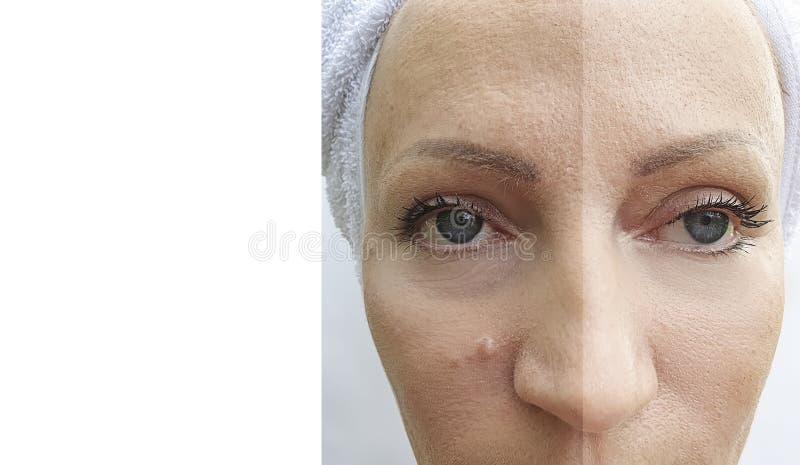 Behandling för korrigering för tillvägagångssätt för dermatologi för kvinnaframsidaskrynklor före och efter mogen royaltyfri fotografi