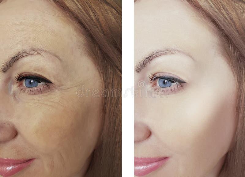Behandlingar för regenerering för kvinnlig för ögonskönhetskrynklor dermatologi för skillnad före och efter antiaging royaltyfria foton