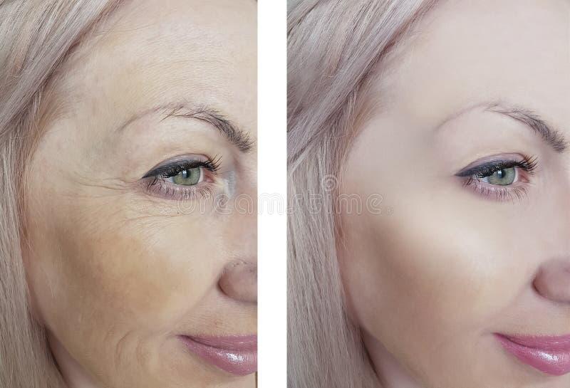 Behandlingar för regenerering för kvinnlig dermatologi för ögonskrynklor före och efter antiaging arkivfoton