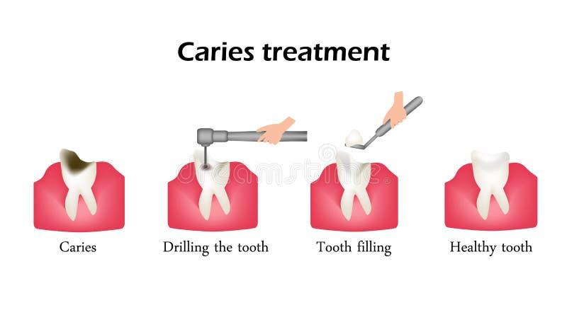 Behandlung von Karies Bohrung eines Zahnes Dichtung des Zahnes Infographics Vektor-Illustration auf Hintergrund stock abbildung