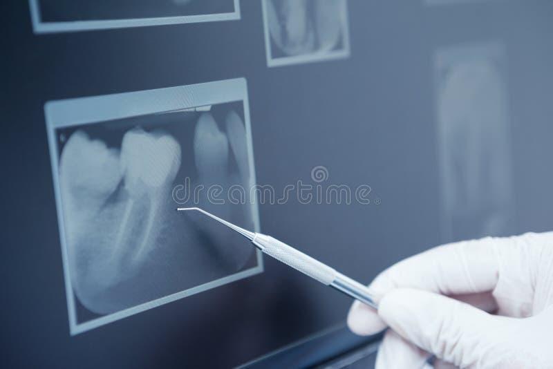 Behandschuhte Hand, die zahnmedizinisches Werkzeug zum Zahnröntgenstrahl hält lizenzfreie stockfotos
