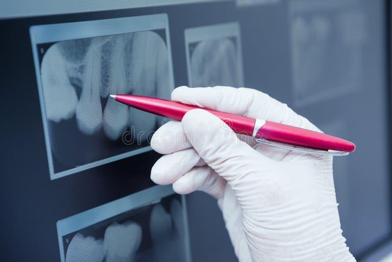 Behandschuhter Handbehälter zum Zahnröntgenstrahl stockbild