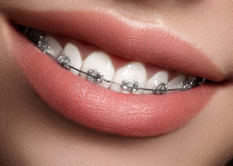 Bei denti bianchi con i ganci Foto di cure odontoiatriche Sorriso della donna con gli accessori ortodontic Trattamento di ortodon immagini stock