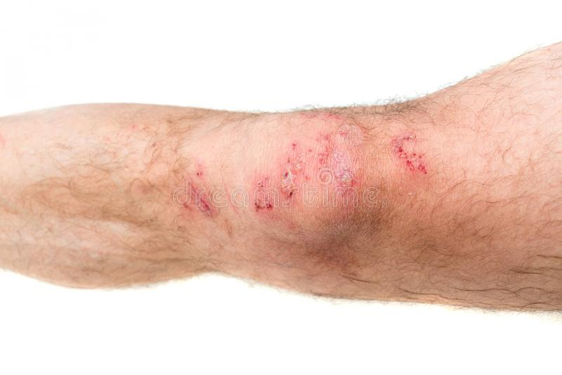 Bein eines Mannes verletzt in einem Motorrad stockbild