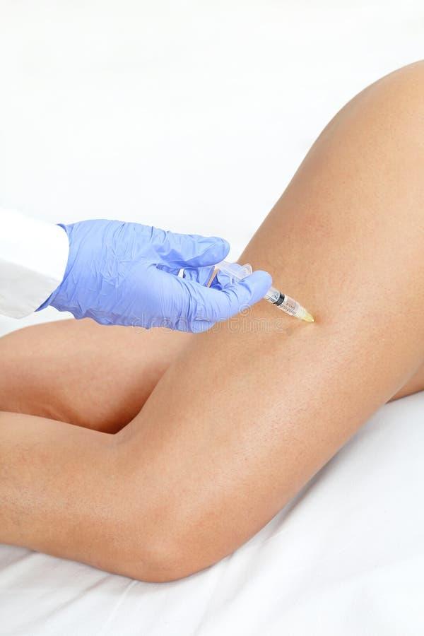 Bein-Einspritzung stockbild