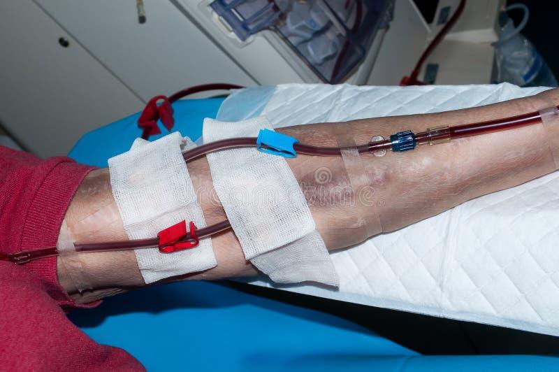 Bejaarde bij de dialyse in het ziekenhuis stock foto
