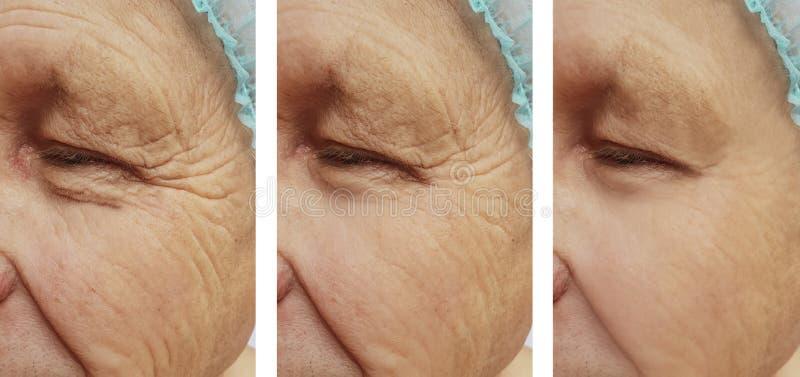 bejaarden` s rimpels op het gezicht voordien na de procedures stock afbeeldingen