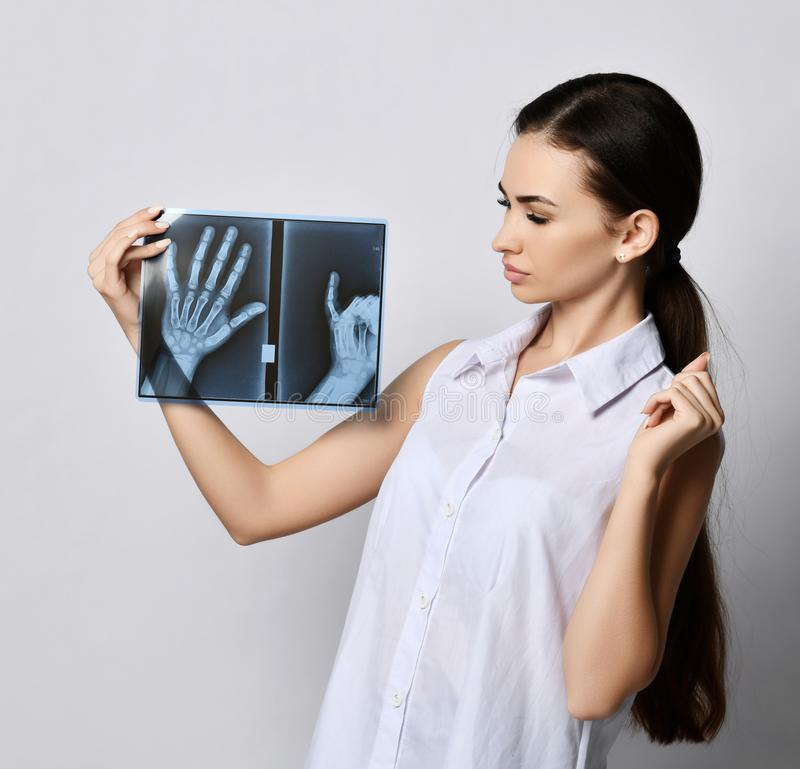 Bekijken de sterk in verwarring gebrachte donkerbruine vrouw arts of de kliniekpatiënt het onderzoek van de handenröntgenstraal royalty-vrije stock foto's