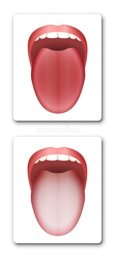 Zunge grau belegte Zungenbelag