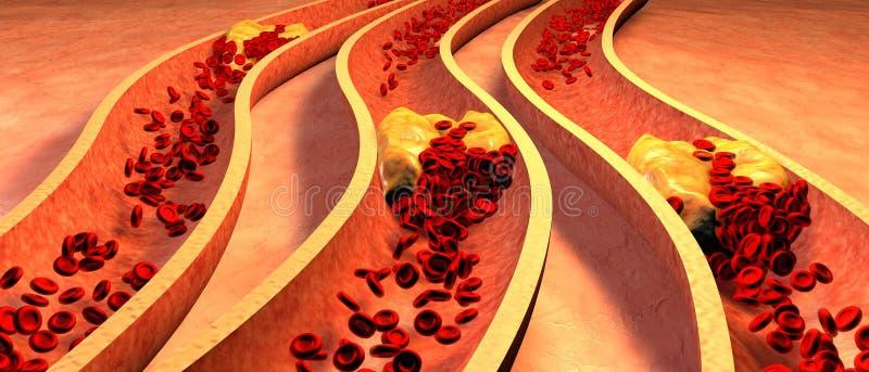 Belemmerde Slagader met plaatjes en cholesterolplaque stock illustratie