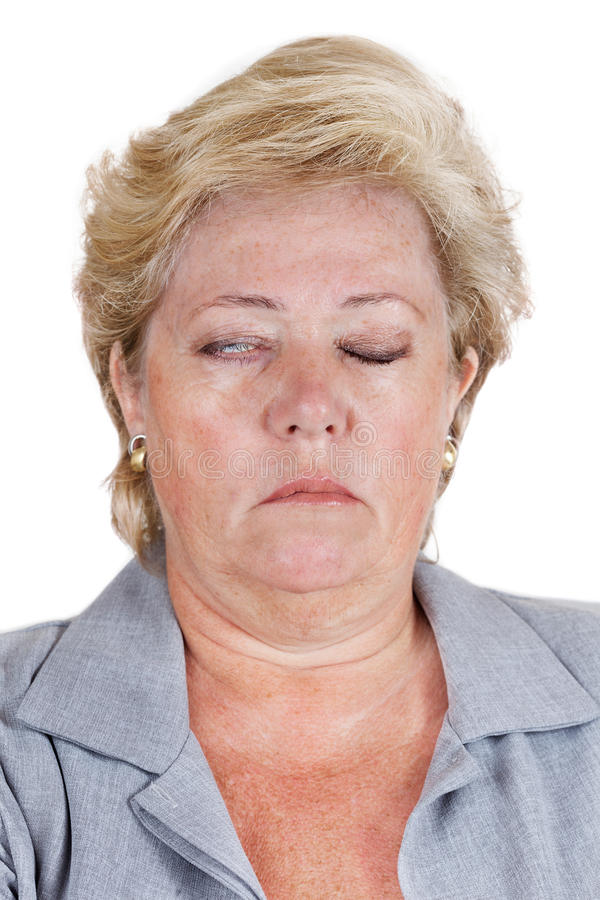 Bell's Palsy - eye won't close. Mature woman with Bell's Palsy unable to fully close her right eye royalty free stock photos