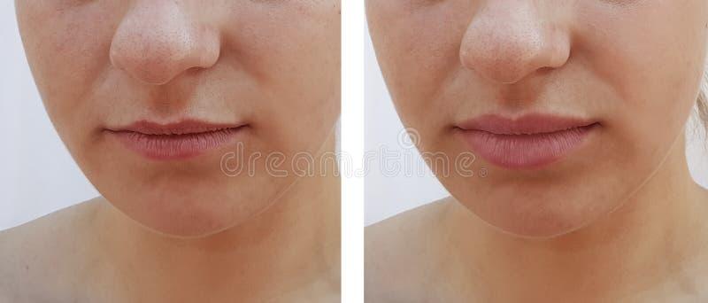 Bella differenza di aumento delle labbra della ragazza prima e dopo le procedure fotografia stock libera da diritti