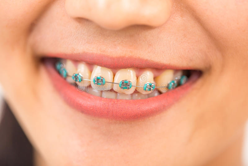 Bella giovane donna con le parentesi sui denti fotografia stock