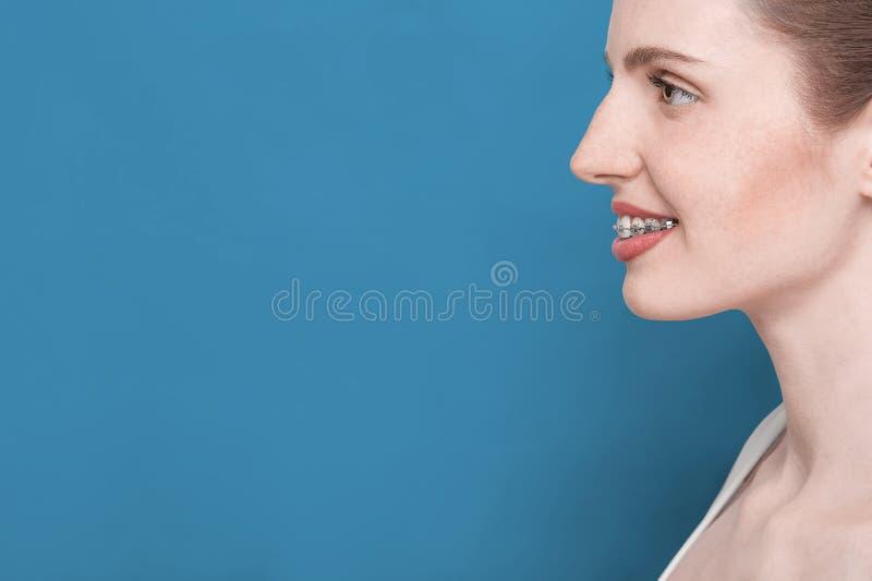 Bella ragazza con le parentesi graffe immagini stock libere da diritti