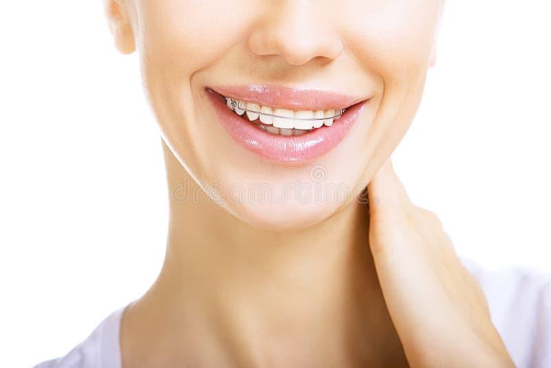 Bella ragazza sorridente con il fermo per i denti immagini stock libere da diritti