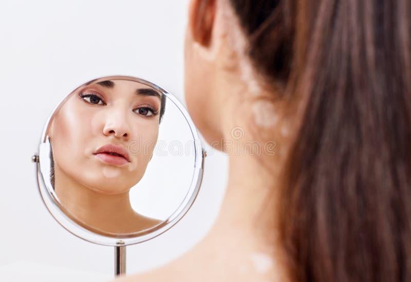 Belle femme avec le vitiligo regardant dans le miroir image stock