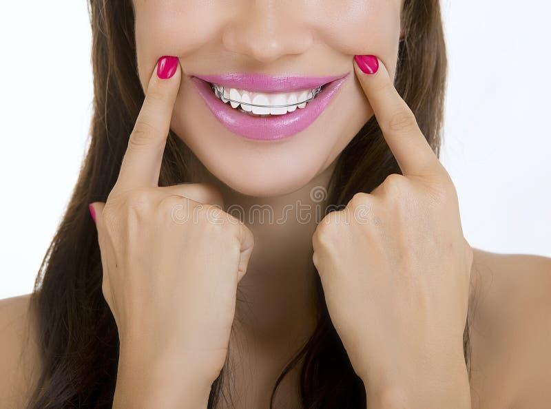 Belle fille de sourire avec l'arrêtoir sur des dents photographie stock libre de droits