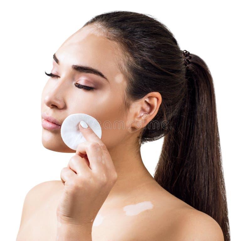 Belle jeune femme avec le vitiligo essuyant son visage avec le disque de coton photographie stock