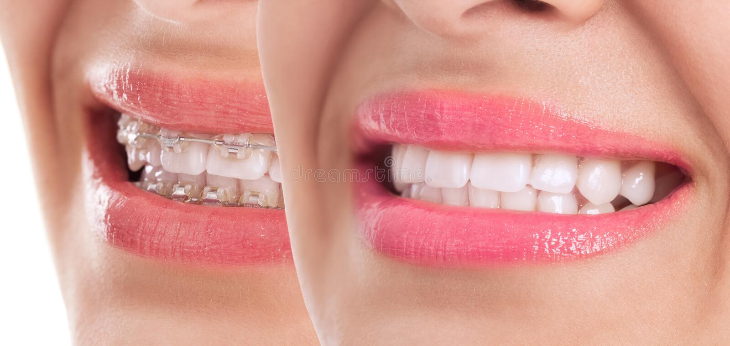 Belles dents après traitement d'accolades photo stock