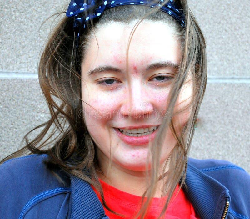 Bellezza femminile con acne fotografie stock