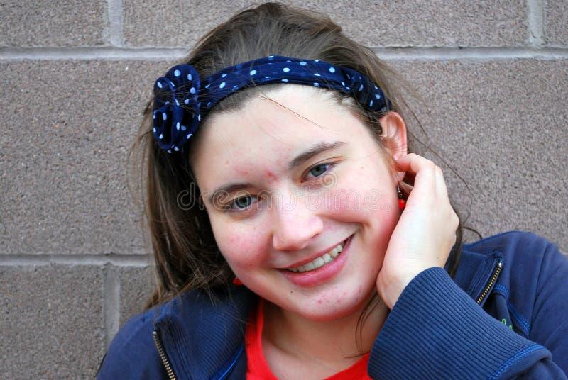 Bellezza femminile con acne immagini stock libere da diritti