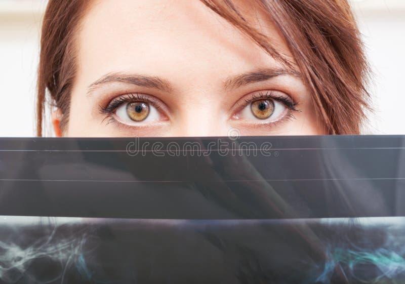 Bello medico femminile osserva sopra i raggi x fotografie stock