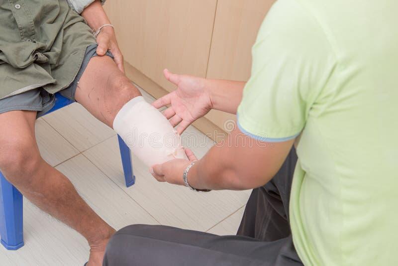 Below knee stump bandaging. Amputee BKA with prothesis preparing royalty free stock images