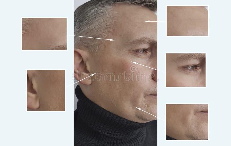 Bemannen Sie die Falten, die vor und nach anti--ageremoval Aknepigmentation der Verfahren altern lizenzfreies stockfoto